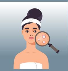 woman having facial skin problems girl using vector image