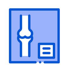 bone x-ray image of human joints orthopedic vector image