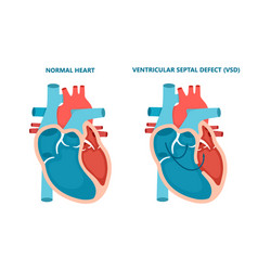 Ventricular septal defect vsd human heart muscle vector