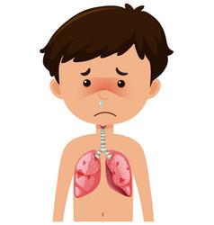 Sick boy from coronavirus with pneumonia vector