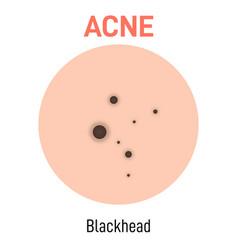 Blackhead skin acne type vector