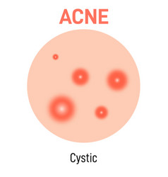 Cystic skin acne type vector