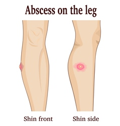 Abscess on the leg vector image