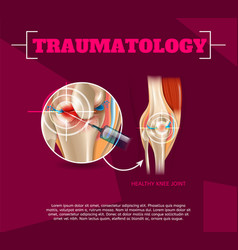 realistic traumatology medicine in 3d vector image