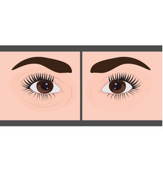 Puffy Eyes Vector Images (40)