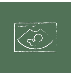 Fetal ultrasound icon drawn in chalk vector