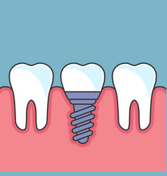Row of teeth with dental implant vector