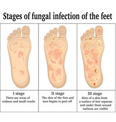 Fungal infection on the feet vector