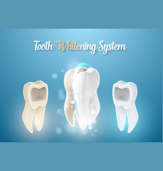 3d realistic teeth cleaning process healthcare vector