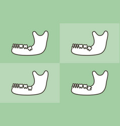 Type wisdom tooth in mandible or lower jaw vector