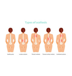 Types scoliosis vector
