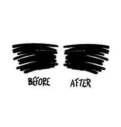Before and after template vector