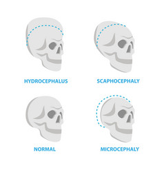 Set of skulls normal and deformed hydrocephalus vector