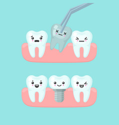 Tooth extraction and implantation stomatology vector