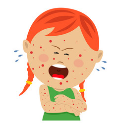 little sick girl with chickenpox crying vector image