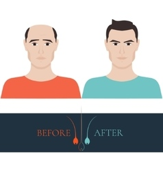 Before and after hair loss treatment vector