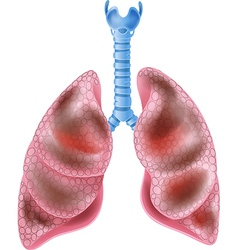 Cartoon of Smokers Lungs vector image