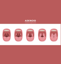 Nasal and throat nasopharynx diseases adenoids vector
