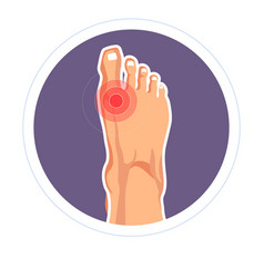 Foot joint injury toe pain arthritis or skeletone vector