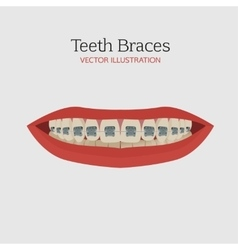 Teeth braces vector