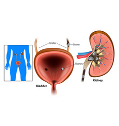 Kidney stones disease vector