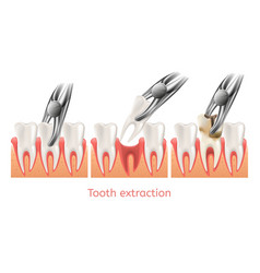 Decay tooth extraction procedure 3d vector