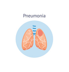 pneumonia disease diagram a healthy and damaged vector image
