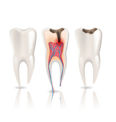 Caries and health tooth 3d realistic pulpitis vector