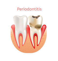 Periodontitis inflammation of gums 3d realistic vector