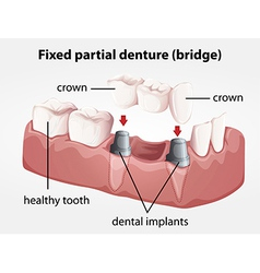 Fixed partial denture bridge vector