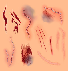 surgical stitches scars bruise vector image