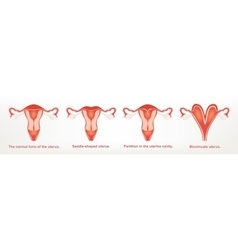 The shape of the uterus the female reproductive vector