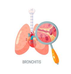 Bronchitis disease icon in flat style vector