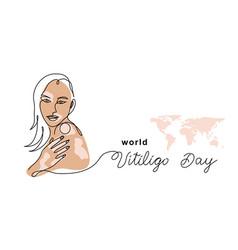 world vitiligo day banner poster vector image