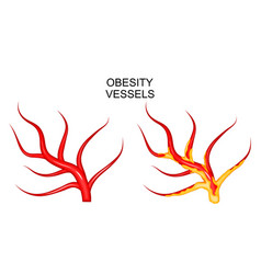 Vessels healthy and obese vector