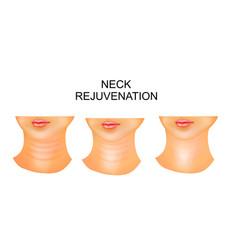 Neck wrinkles rejuvenation vector