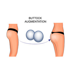 female buttocks implants buttock augmentation vector image