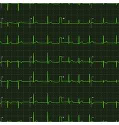 Typical human electrocardiogram green graph on vector