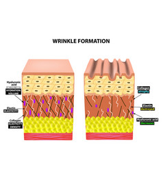 the appearance of wrinkles anatomical structure vector image