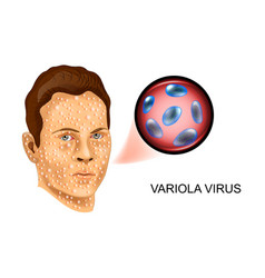 Variola virus the defeat of the face vector