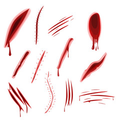 Graphic realistic wound set with blood splash vector