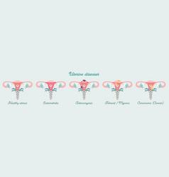 Women health - infographics uterus diseases vector