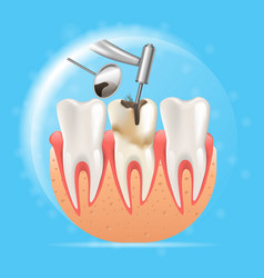 Realistic cleaning caries 3d vector