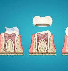 Breaking teeth vector image