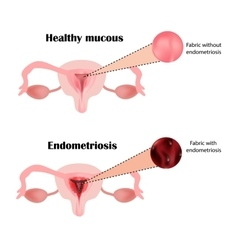 Endometriosis The structure of the pelvic organs vector image
