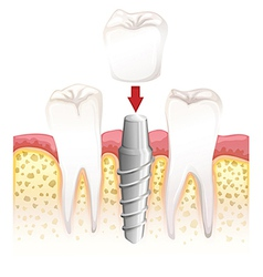 Dental crown procedure vector