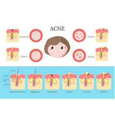 Acne types and formation infographics flat vector