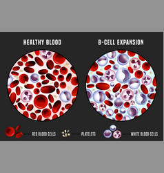 leukemia infographic image vector image