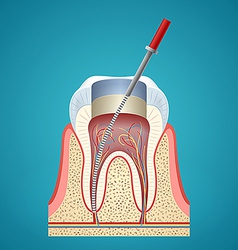 Dental injection in cutaway vector image