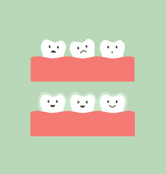 Before and after teeth wear invisible braces vector